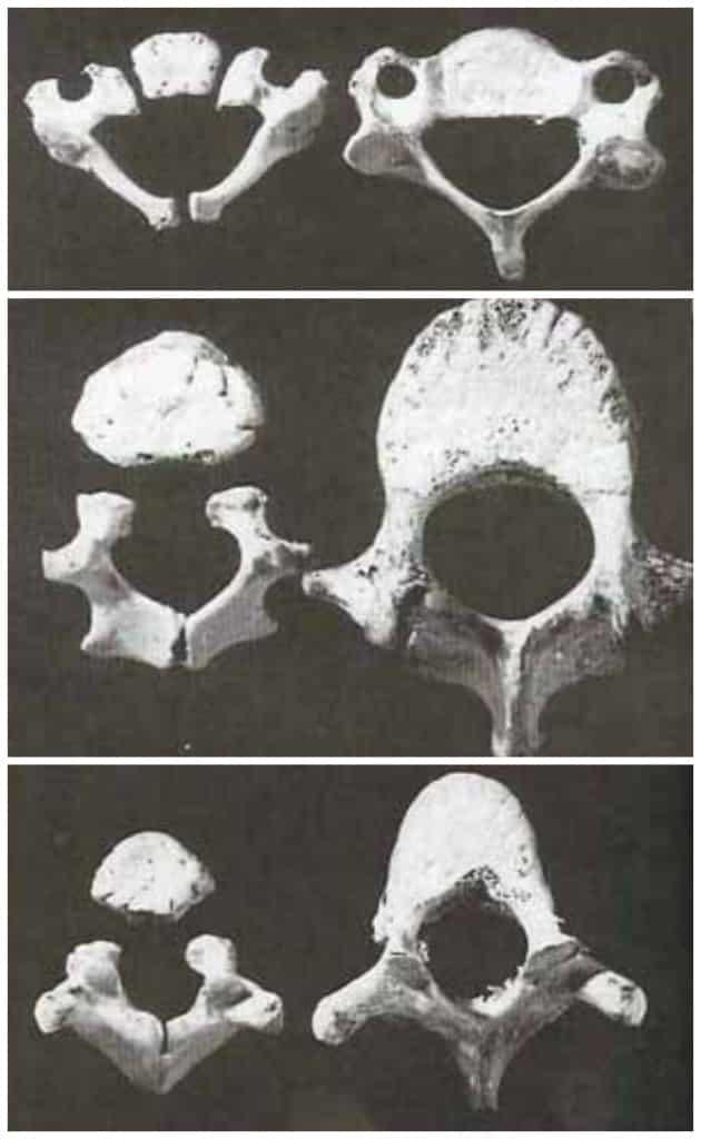 (photo credit: White, T. Human Osteology, 2000)