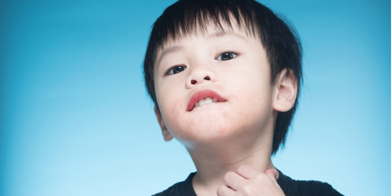Asian boy has milk allergy which he might outgrow